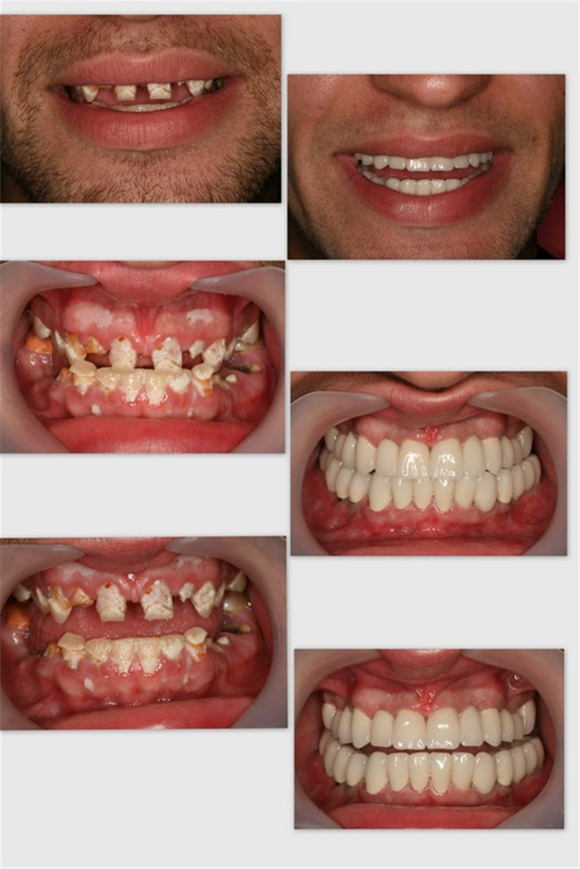 Dişlerdeki kronlar