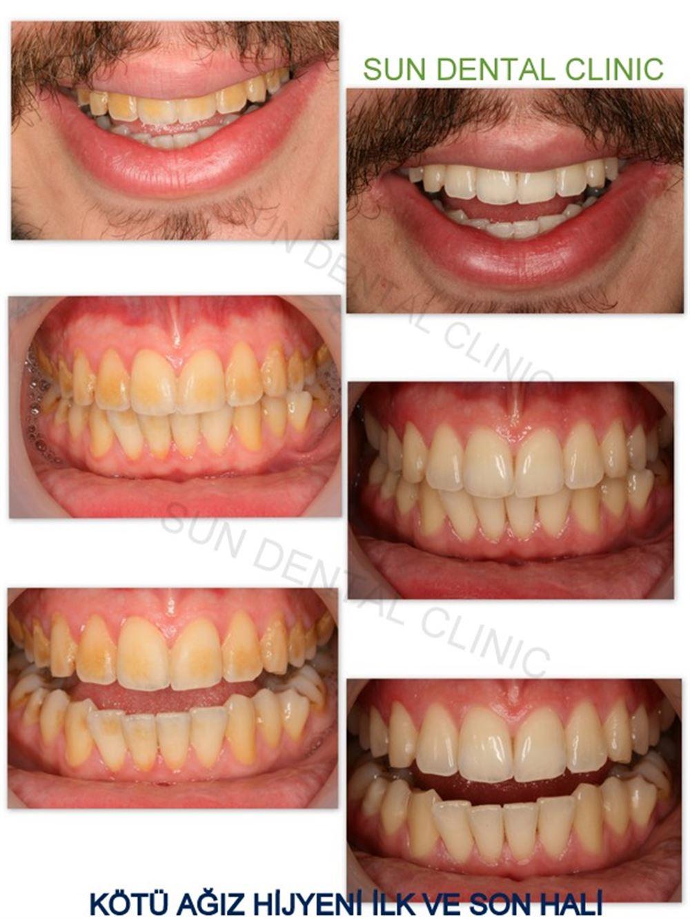 Diş Eti Morarması